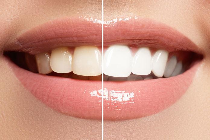 Jak wybielić martwe zęby?
